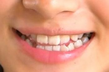 古泉葵の前歯