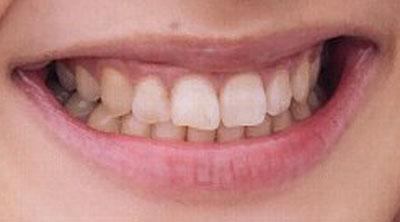 松本若菜 前歯