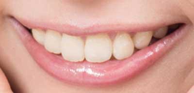 最上もが 前歯