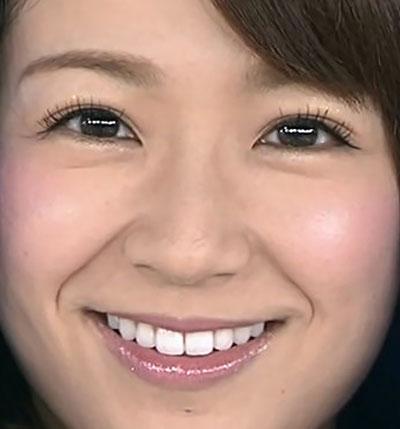 長野美郷 白い前歯