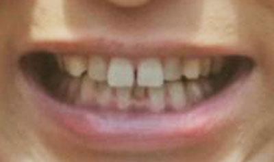 佐藤隆太の前歯