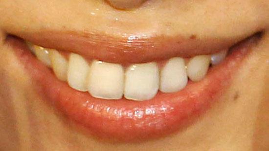 潮田玲子 前歯の画像