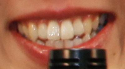 村主章枝 前歯