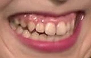 庄司理紗 前歯