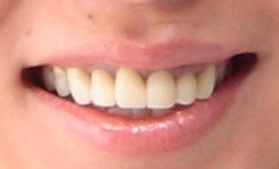 田中雅美 差し歯の前歯