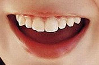 谷澤恵里香 前歯