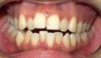 ざわちん 元の歯