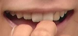 外岡えりか 前歯の画像