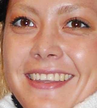 土屋アンナ 前歯の写真