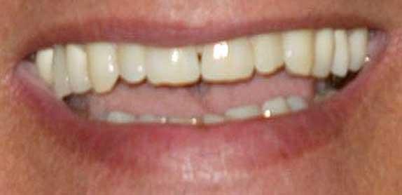 アーノルド・シュワルツェネッガー 前歯の画像