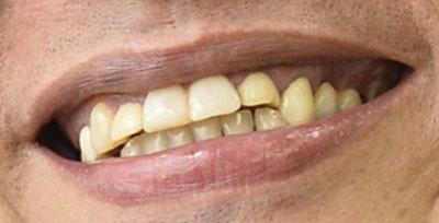 遠藤憲一 前歯の画像