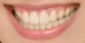 吹石一恵 前歯