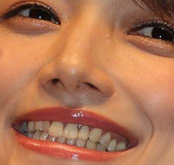 後藤真希 前歯の写真