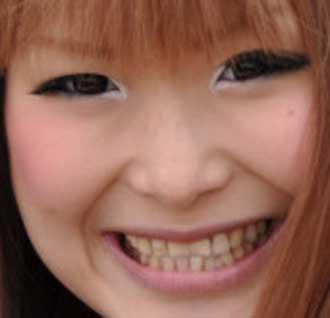 ギャル曽根 前歯