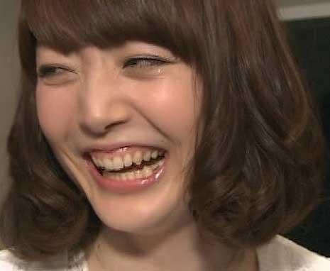 花澤香菜 歯茎