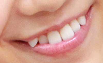 磯原杏華 前歯の写真