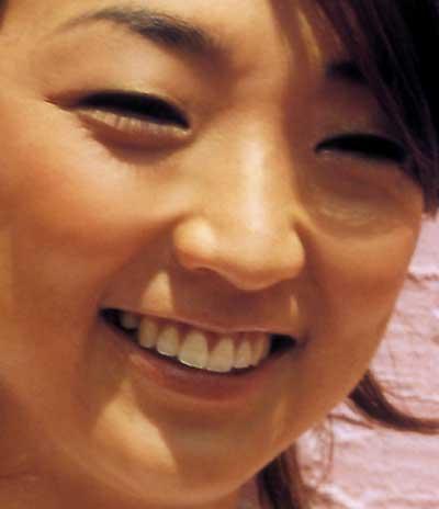 岩崎恭子 前歯