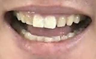 川崎宗則 前歯の写真