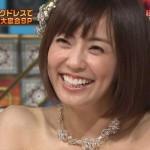 小林麻耶アナウンサーの前歯と歯並び(ビーバー歯解消)