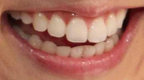 小林麻耶 前歯の写真