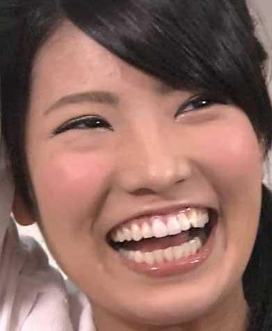 倉持明日香 前歯の写真