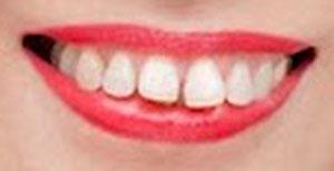 松島みどり 前歯