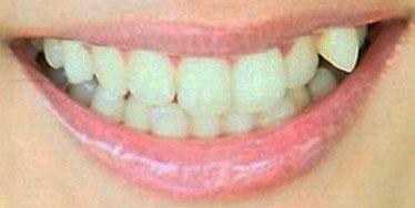 みひろ 前歯