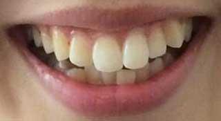 未来穂香 前歯