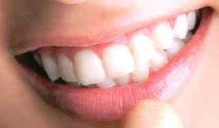 水川あさみ 前歯