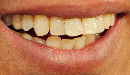 長渕剛 前歯