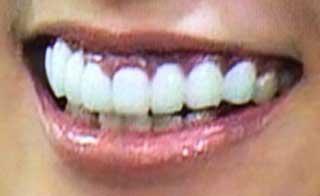 並木優奈 差し歯 インプラント