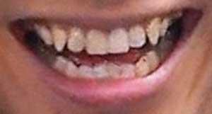 NAOTO 前歯
