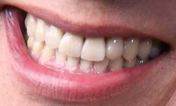 西村雅彦 前歯
