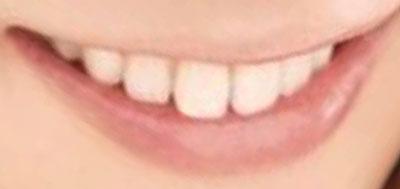 西野カナ 前歯の画像