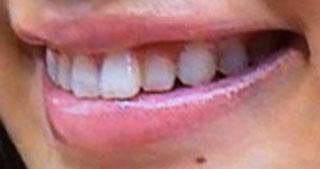 岡本杏理 歯並び