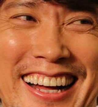 佐々木蔵之介 前歯の写真