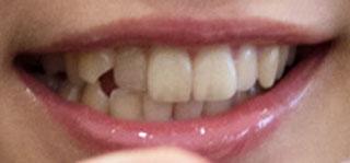 佐山彩香 前歯の写真