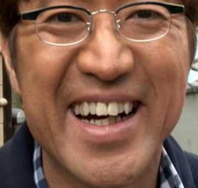 大竹一樹 前歯