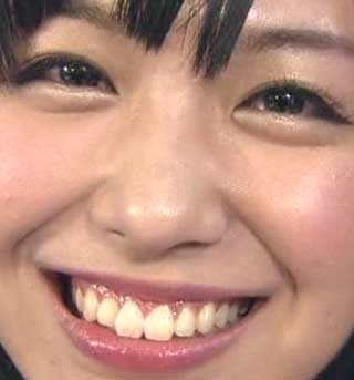 愛美 前歯の写真