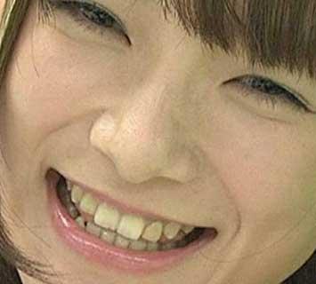 外岡えりか 前歯の写真