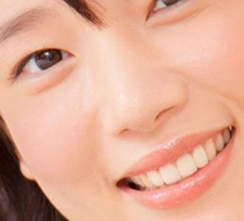内田真礼 銀歯