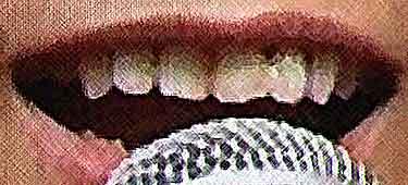 山下智久 歯