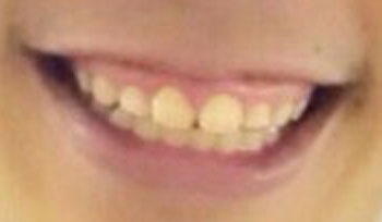 山口観弘 前歯