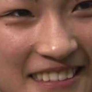 RENAの前歯