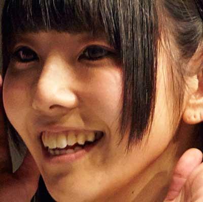 相沢梨紗 前歯の写真