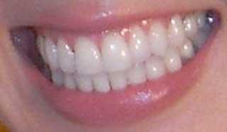 東尾理子 前歯と銀歯