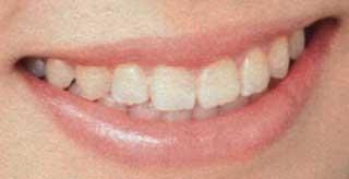石原夏織の前歯の写真