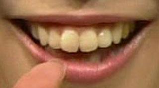 片山千恵子 前歯の写真