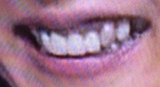 かとうれいこ 黒い歯茎