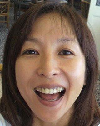 かとうれいこ 前歯の写真